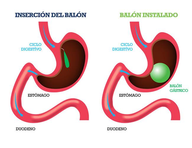 Balón Intragástrico - CirugíaBariatrica - IMOBariatrica