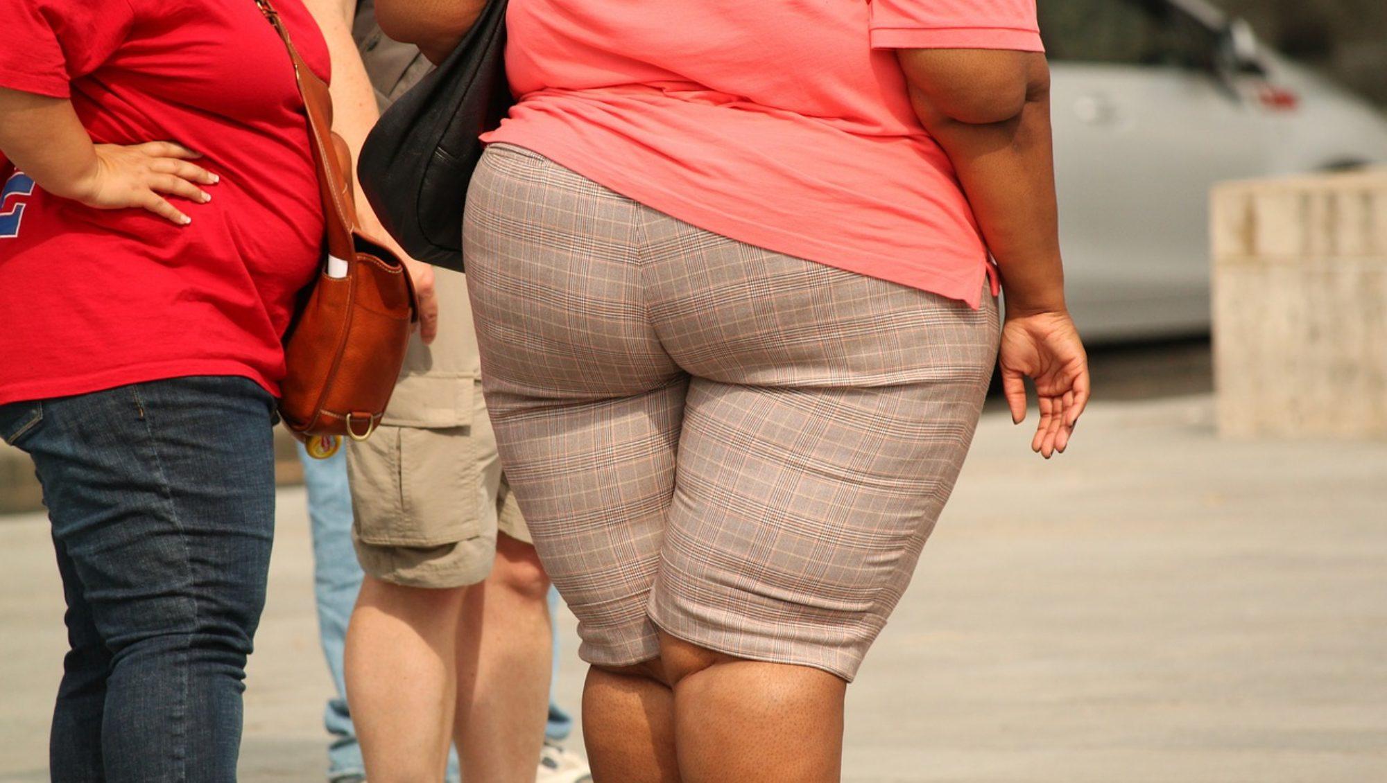 obesidad mórbida - Bajar de Peso - IMObariatrica