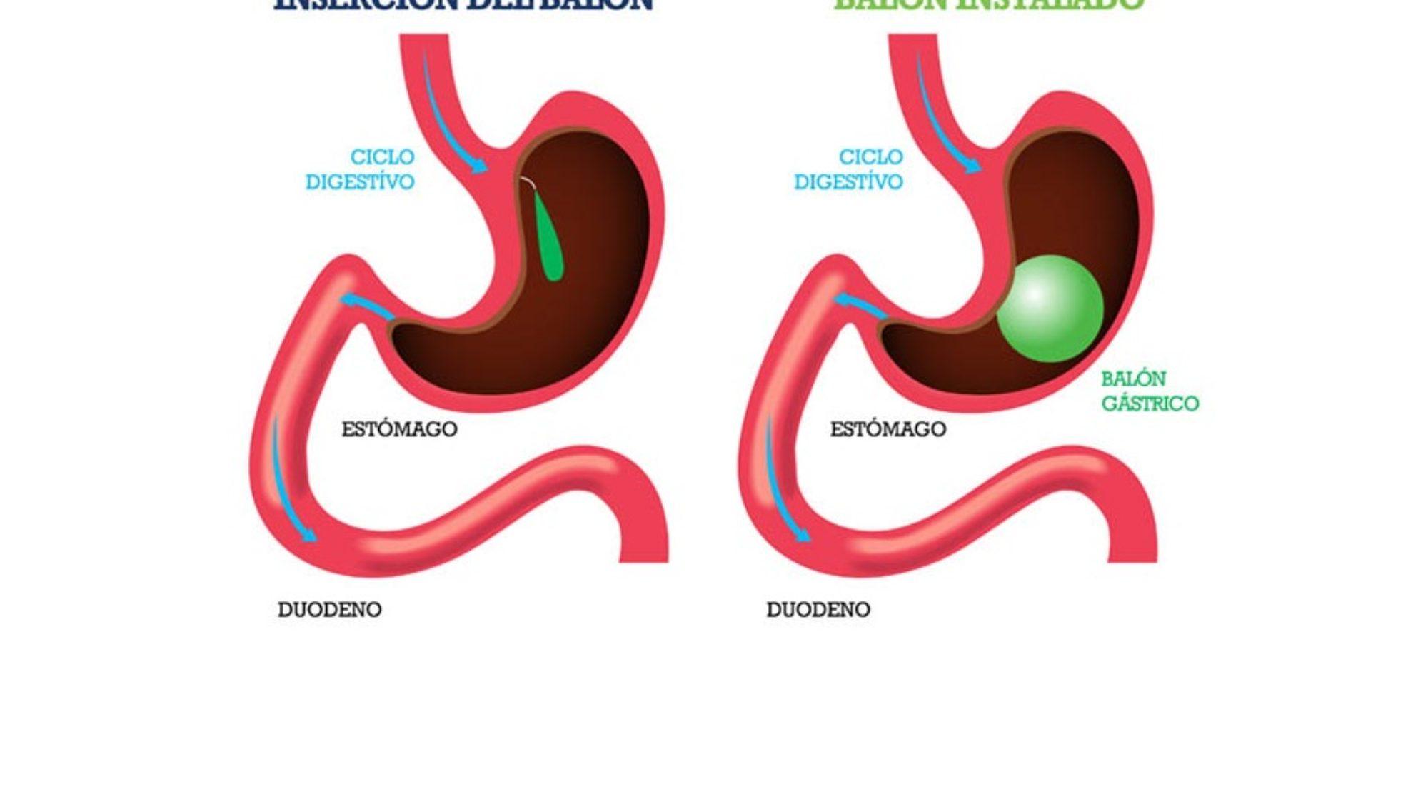 Balón-Intragástrico-CirugíaBariatrica-IMOBariatrica (Grande)