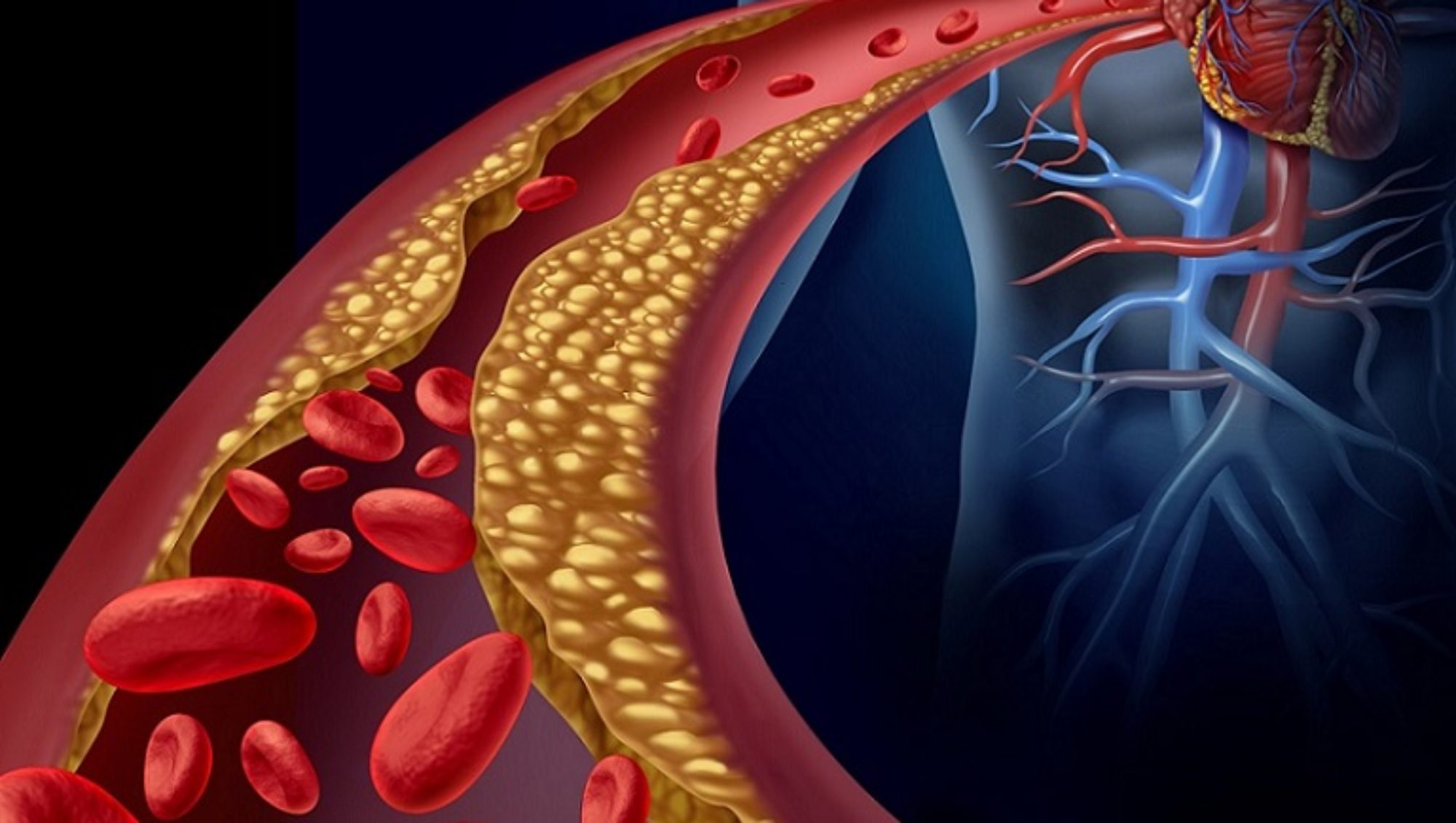Las dislipidemias-arterias-IMOBariatrica (media)