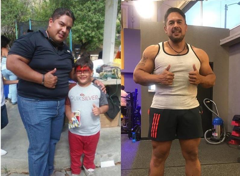 Bariátrica - Cirugías - Pacientes-IMO-Carlos Zapata - cirugía metabólica