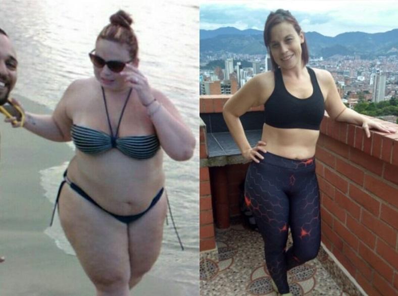 Bariátrica - Cirugías - Testimonios -IMOBariatrica- Manuela Tovar - cirugía metabólica