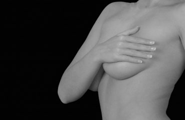 Mastopexia-mamoplastia-IMOBariatrica